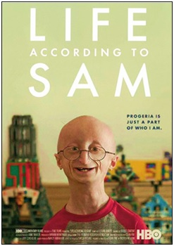 Progeria Sam Berns