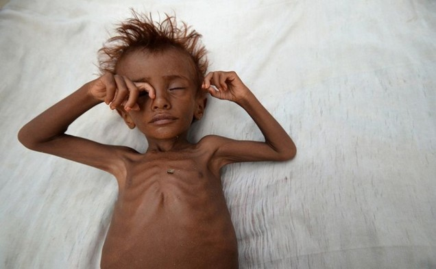 Image result for Yemen A Hellish War